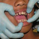 avondale-emergency-dentist